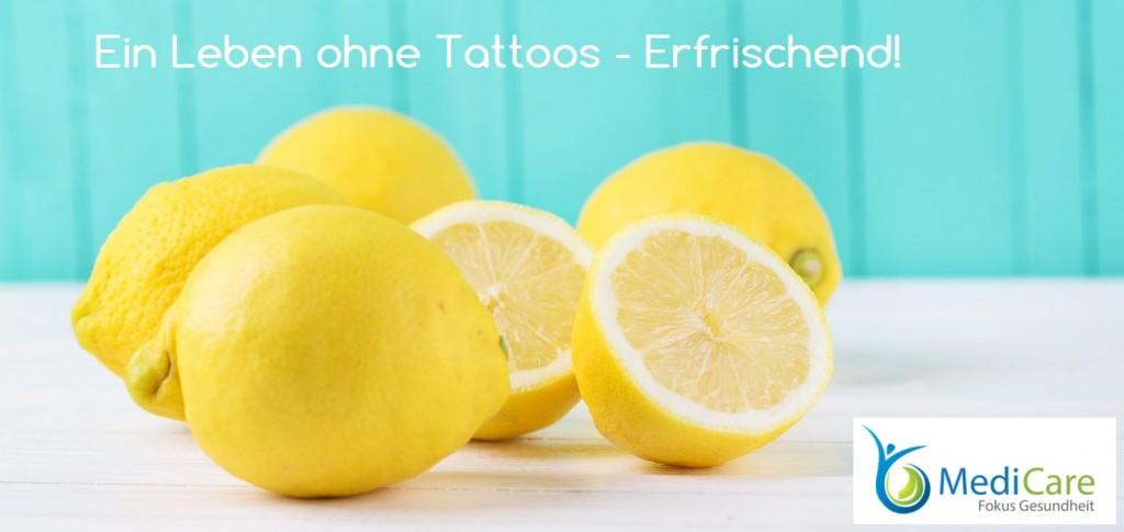 Tattooentfernung mit tattoo-entfernen-lassen.de